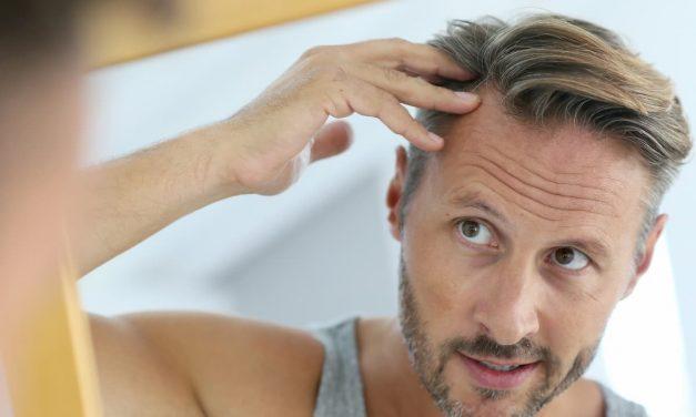 5 mythes sur la perte de cheveux